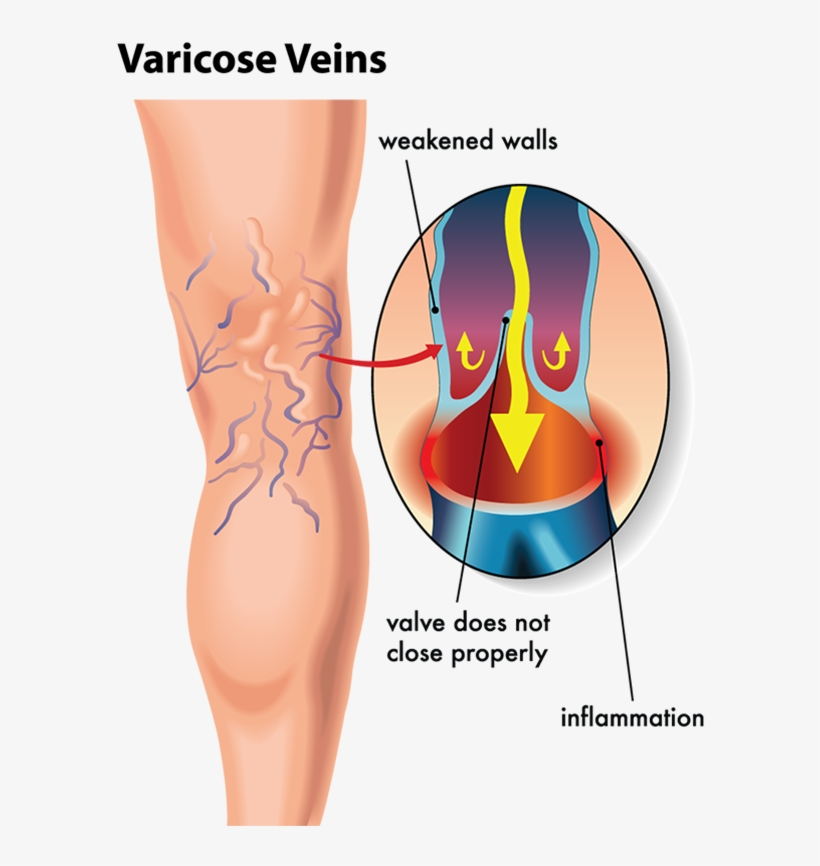 By Unsightly Veins Are Delighted With The Results They Varicose