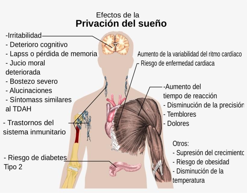 Open - Efectos De La Privación Del Sueño, transparent png #1250654