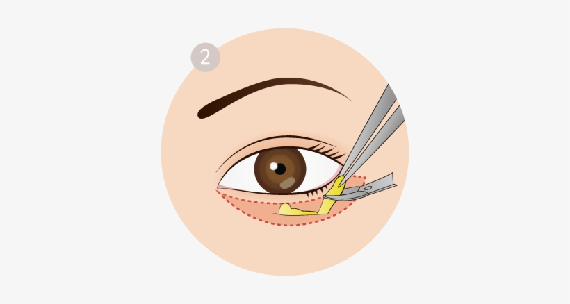 Royalty Free Stock Fresh Plastic Surgery Removes Saggy - Royalty-free, transparent png #1282606