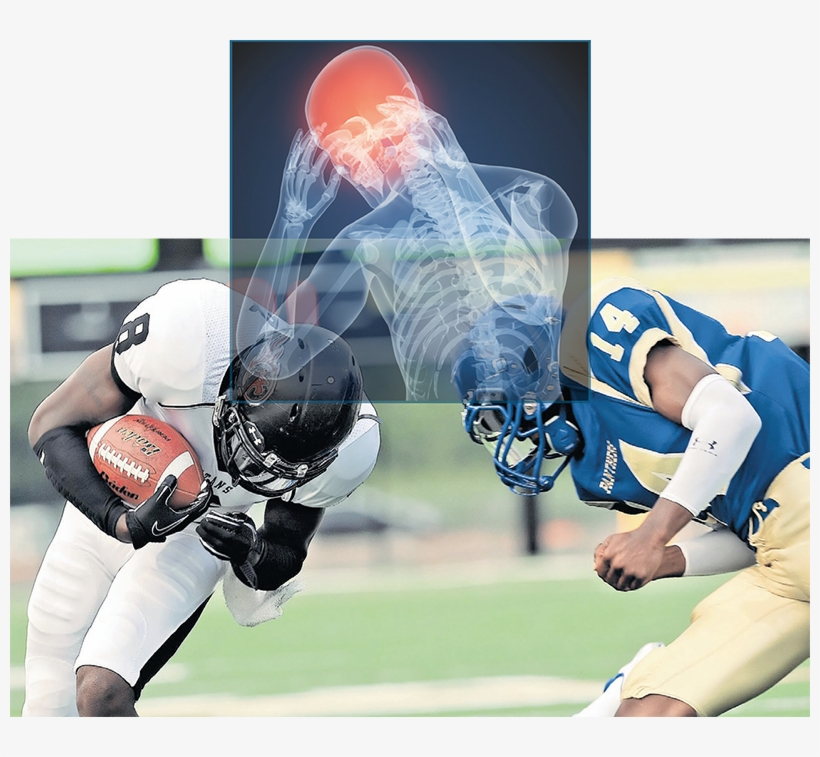 Concussion - Football Sport Related Concussion In The Young Athlete, transparent png #1660716