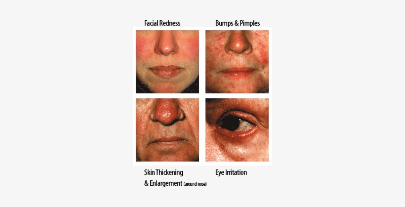 "Many People Notice That Their Rosacea ""flares"" Or Symptoms - Red Face Stress, transparent png #2882121"