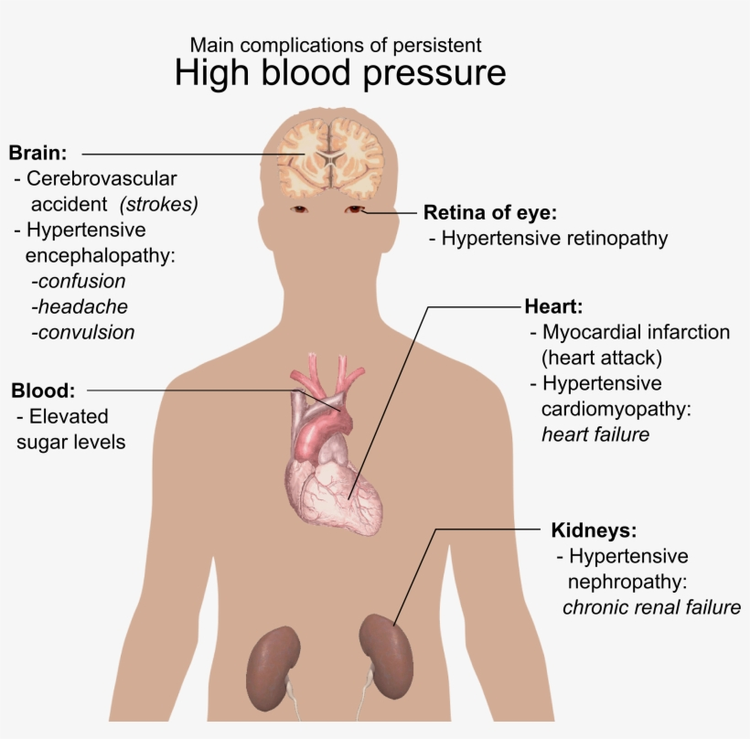 Main Complications Of Persistent High Blood Pressure - Do You Know If You Have High Blood Pressure, transparent png #3166462