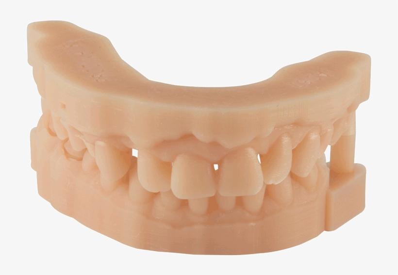 Dental Material 3d Printing For Dental Parts - 3d Printed Dental Model, transparent png #3526334