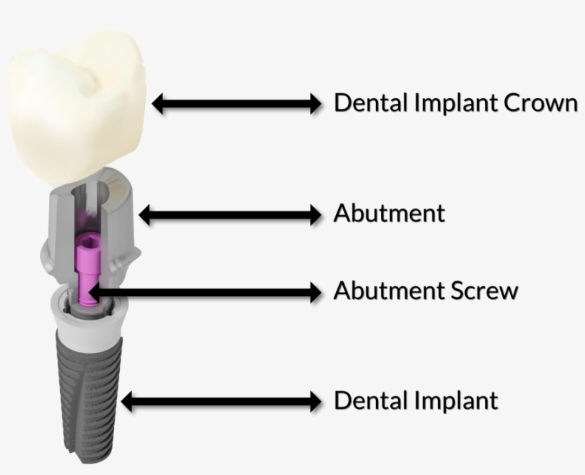 What Is The Difference Between A Dental Crown And A - Fixture Screw Abutment Crown, transparent png #4173918