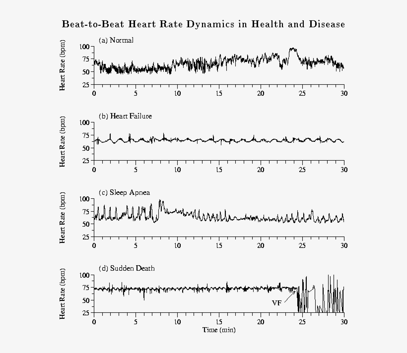Heart Rate Time Series Of 30 Min From A A Healthy Heart Failure Heart Beat Free Transparent Png Download Pngkey