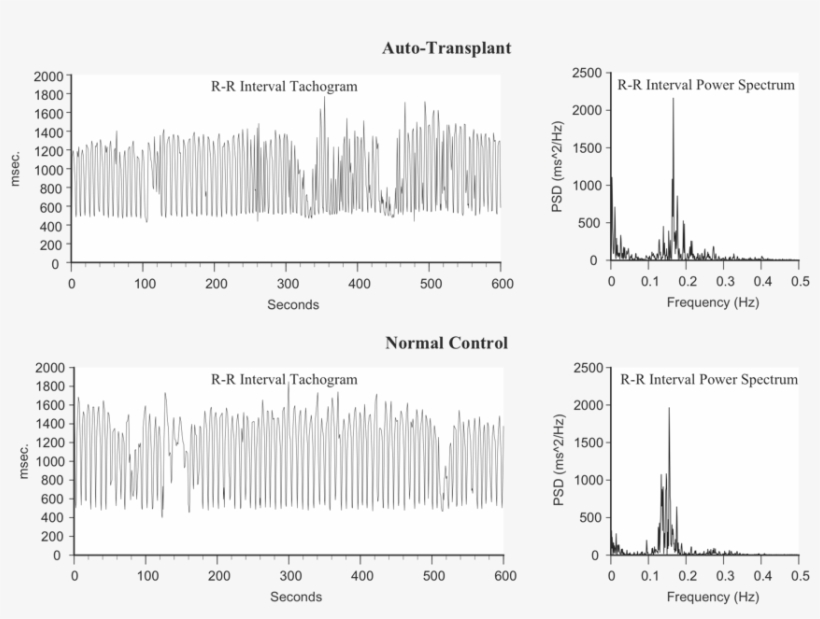 Heart Rhythms Generated By A Transplanted Heart At - Blood Pressure, transparent png #690653