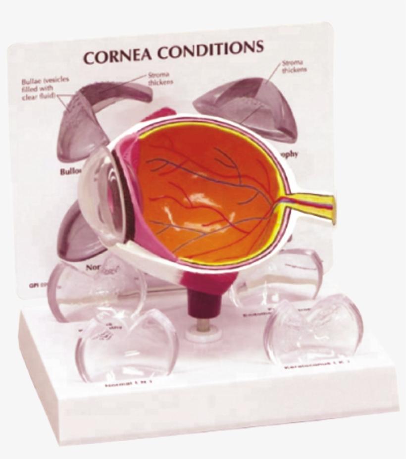 Human Eye Model With Pathological Cornea - Cornea On A Model, transparent png #7605431