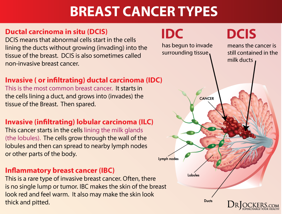 On The Other Hand, 20 To 30% Of Breast Cancer Cancers - Types Of Breast Cancer (900x683), Png Download