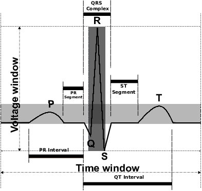 Download Typical Surface Ecg Signal Heart Beat - Heart Rate PNG